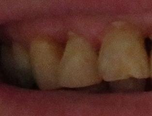 graue Zähne